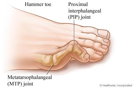 hammer-toe